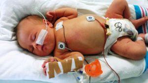 neonato tin 300x169 - Osteopatia e Neonatologia binomio vincente