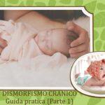 Layout immagine con didascalia 150x150 - Brachicefalia e Plagiocefalia, Mamma aiutami ad evitarla (parte 2)
